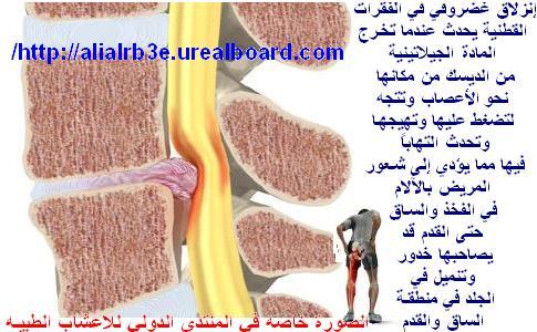 علاج الانزلاق الغضروفي l4 -l5 -s1 تعريف الانزلاق انضر الى