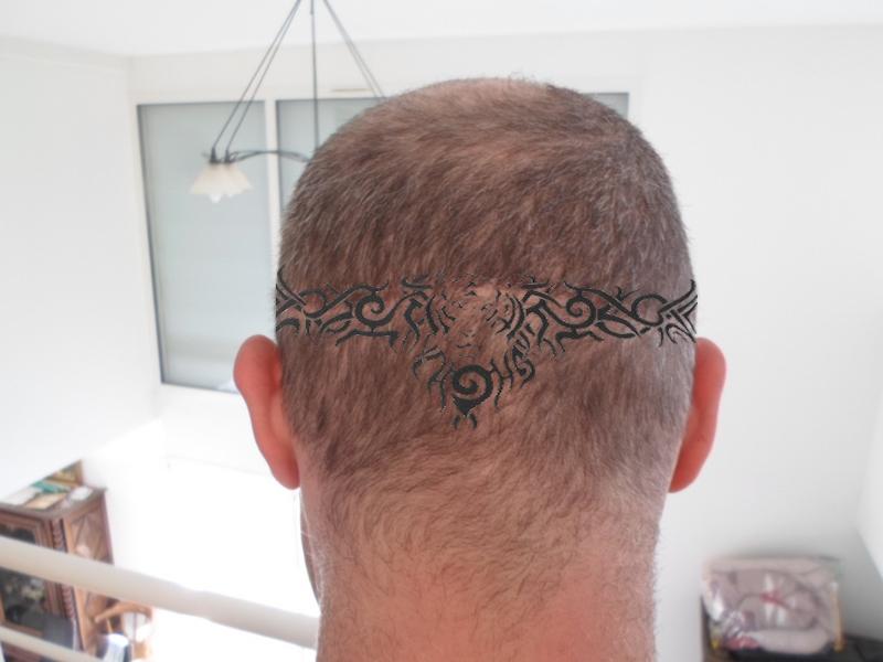 international hair loss forum tatouage pour camoufler la cicatrice sur la nuque. Black Bedroom Furniture Sets. Home Design Ideas